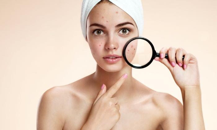 peau problématique vinaigre de cidre acné