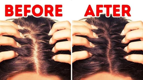 améliorer solidité cheveux endroits nus