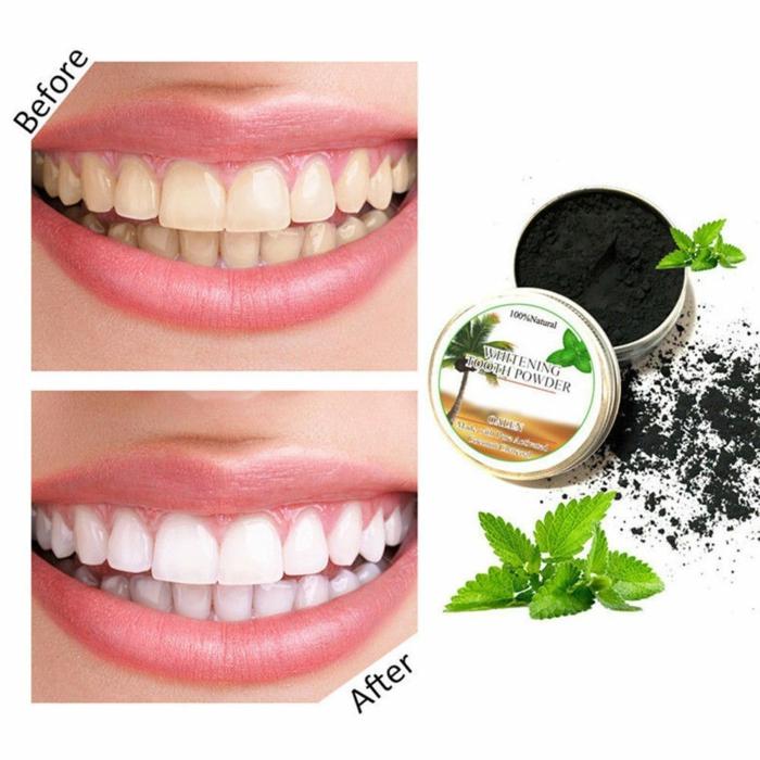 idée comment blanchir les dents avec du charbon actif