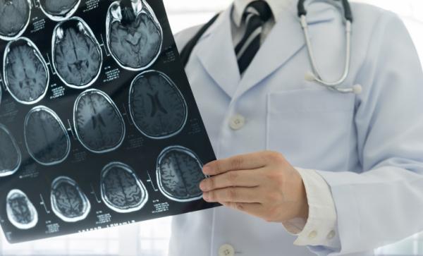 maladie d' Alzheimer consulter un spécialiste