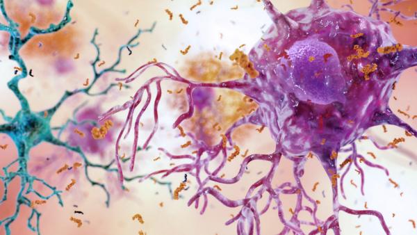 maladie d' Alzheimer inflammation du cerveau