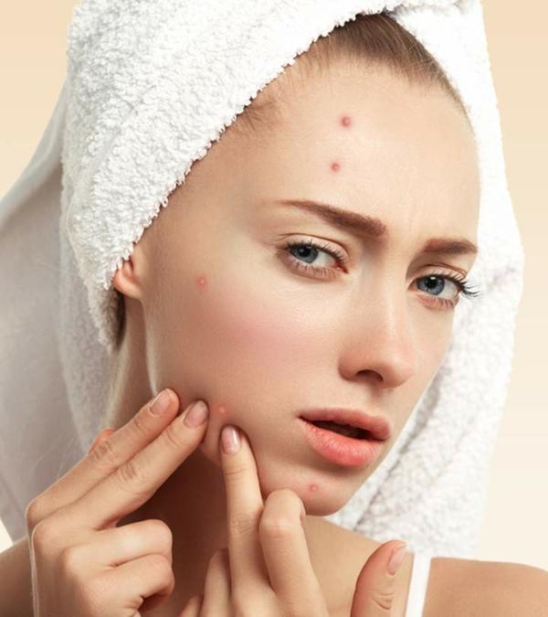 Eau oxygénée 20 utilisations dans la maison et le jardin soin de la peau acnéique