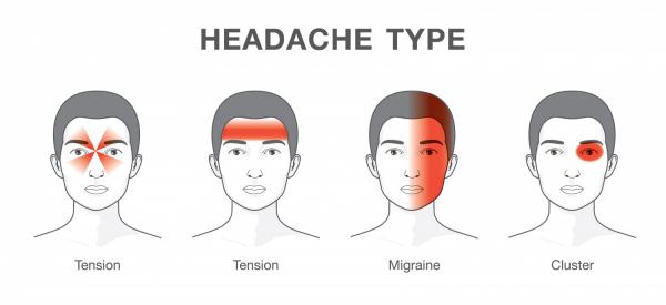 migraine fréquente types de maux de tête