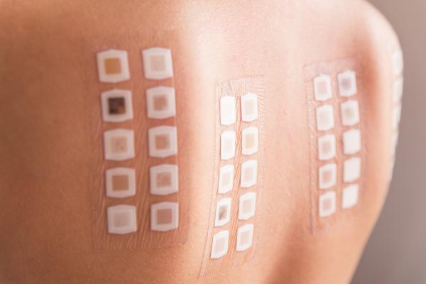 traitement allergies beaucoup de tests
