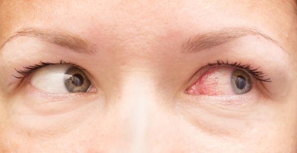 traitement allergies yeux atteints par l'allergie