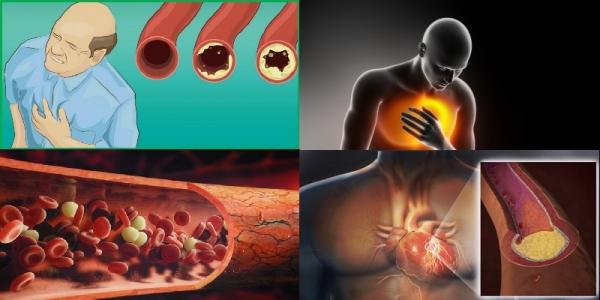 quel aliment pour déboucher les artères danger pour le coeur
