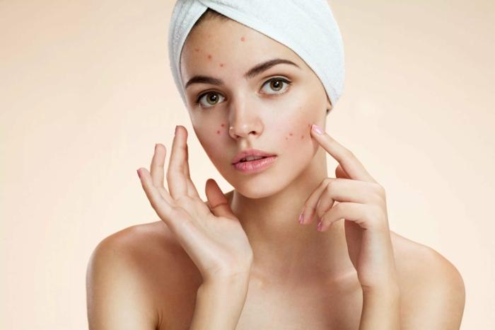 peau acnéique extrait de pépins de pamplemousse