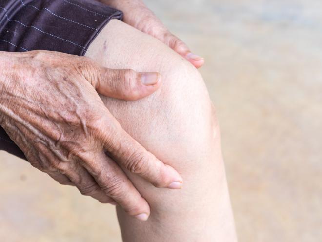 arthrite grande douleur