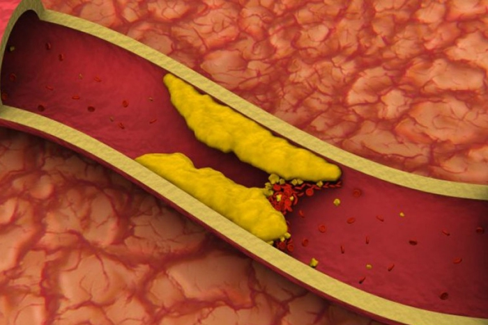 jus de carotte pour un niveau bas de cholestérol
