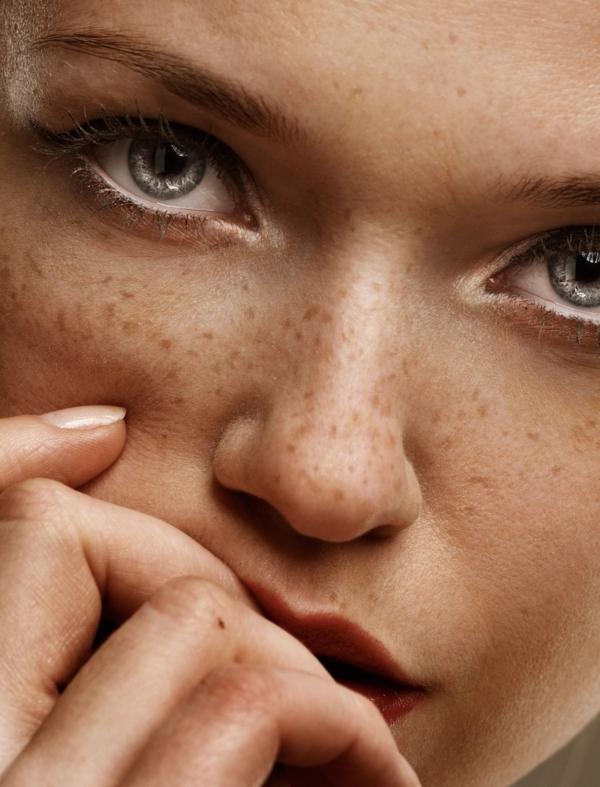 que faire avec du persil problèmes de la peau
